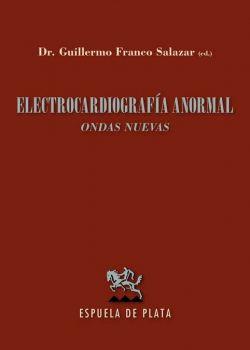 Electrocardiografía anormal